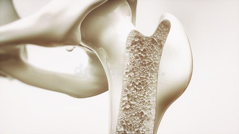 Etapa 3 de la osteoporosis de la representación 4 - huesos superiores del miembro - 3d ilustración del vector