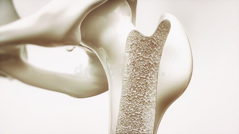 Etapa 2 de la osteoporosis de la representación 4 - huesos superiores del miembro - 3d stock de ilustración