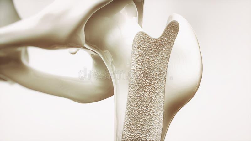 Etapa 1 de la osteoporosis de la representación 4 - huesos superiores del miembro - 3d stock de ilustración