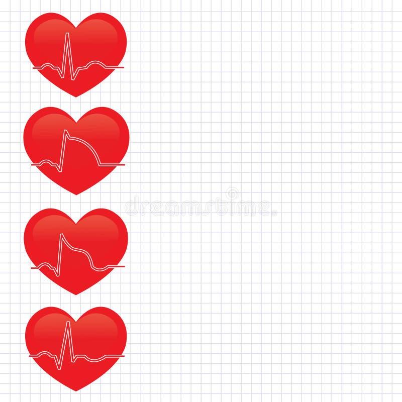 Etapa del infarto del miocardio stock de ilustración