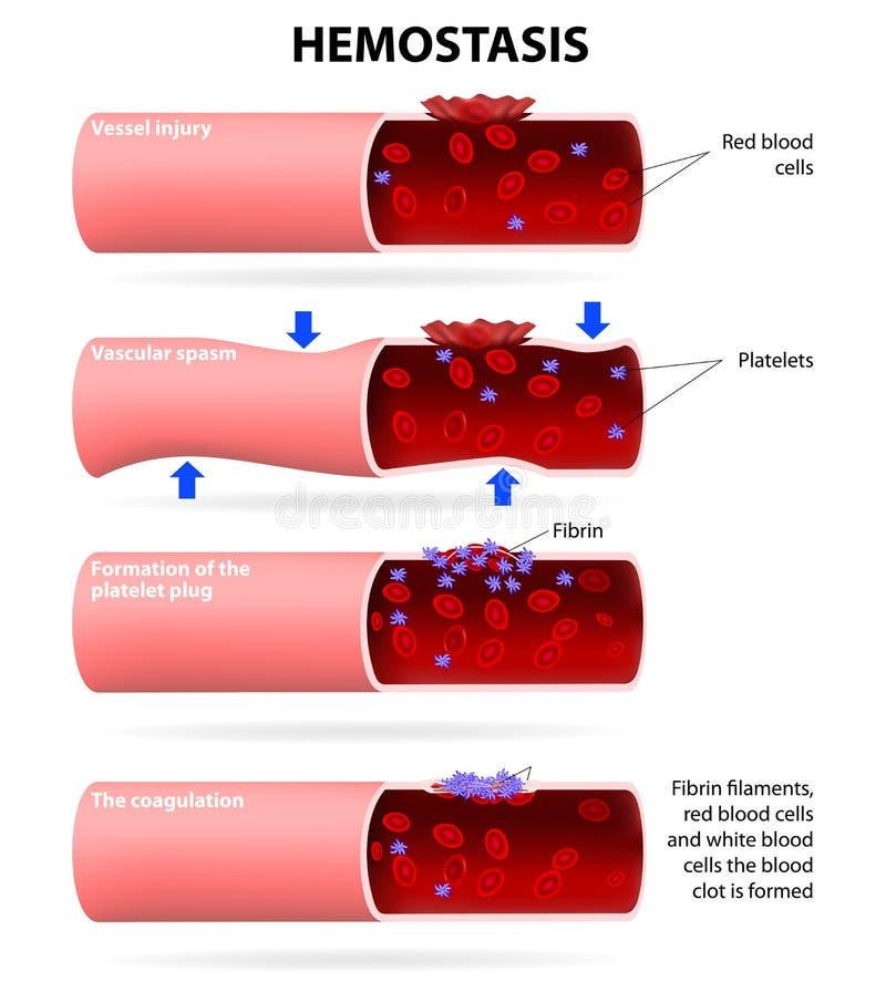Etapas básicas no hemostasis ilustração do vetor