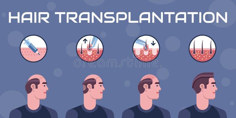 Etapas da transplantação do cabelo ilustração royalty free