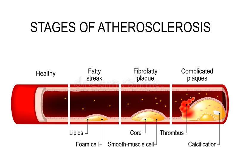 Etapas de la ateroesclerosis stock de ilustración