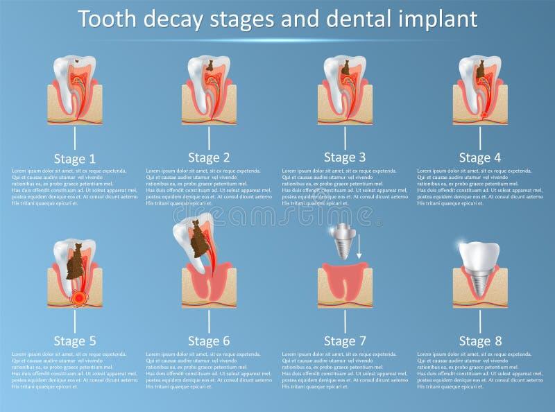 Etapas de la caries y ejemplo del vector del implante dental stock de ilustración