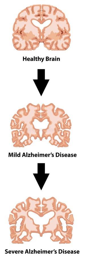 Etapas de la enfermedad de Alzheimers libre illustration