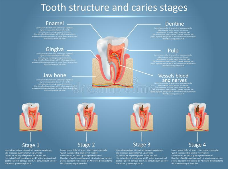 Etapas del diagrama de la estructura del diente del vector y de la carie dental stock de ilustración