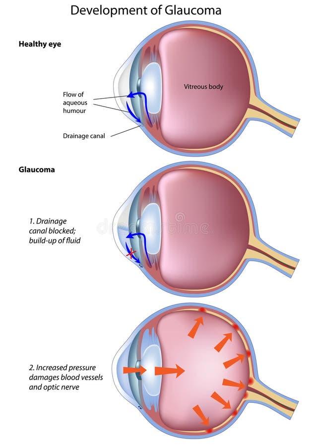 Etapas del glaucoma ilustración del vector