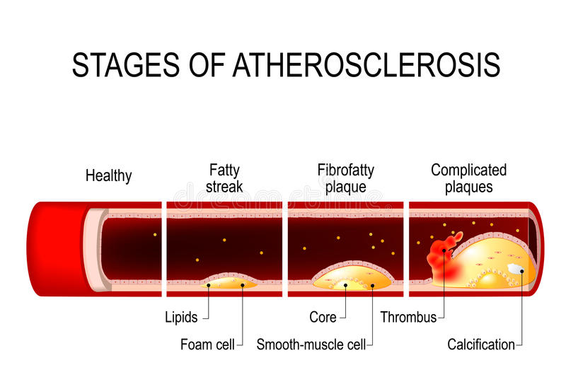 Etapper av Atherosclerosis stock illustrationer