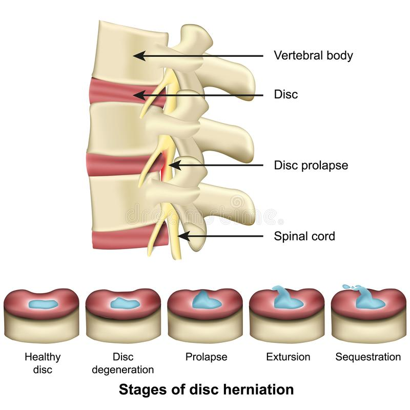 Etapper av diskettherniationryggen och illustrationen f?r vektor f?r diskettanatomi 3d den medicinska royaltyfri illustrationer