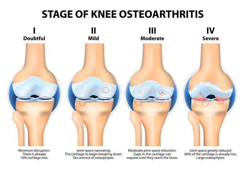 Etapper av knäosteoarthritisen (OA) royaltyfri illustrationer