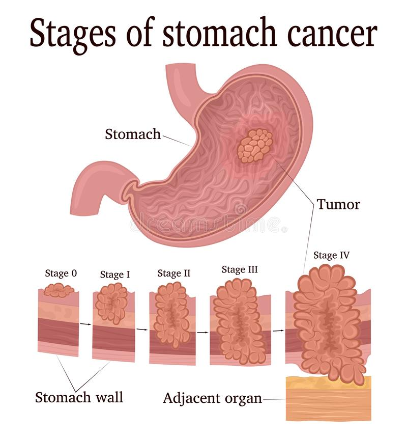 Etapper av magcancer royaltyfri illustrationer