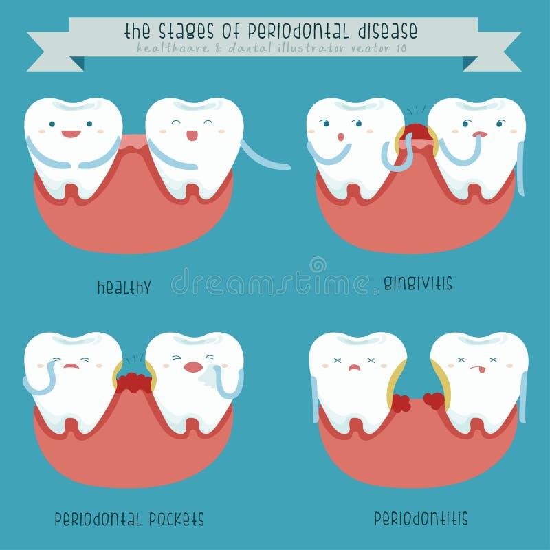 Etapperna av den tandrot- sjukdomen vektor illustrationer