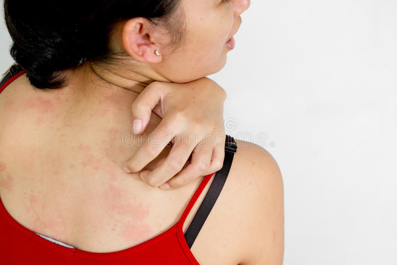 Ethic young woman back with itchy skin. Young woman scratch her itchy back with skin rash royalty free stock photos