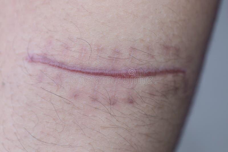 Ett ärr av det fintrådiga silkespappret som byter ut normal hud efter en skada på hud fotografering för bildbyråer
