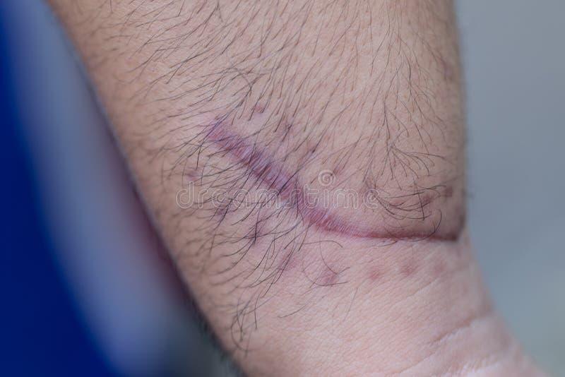 Ett ärr av det fintrådiga silkespappret som byter ut normal hud efter en skada på hud royaltyfria foton