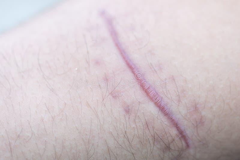 Ett ärr av det fintrådiga silkespappret som byter ut normal hud efter en skada på hud royaltyfria bilder