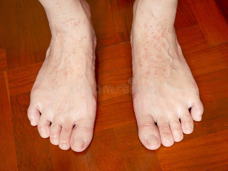 Ett kliande överilat för hud på kvinnas fot arkivbild