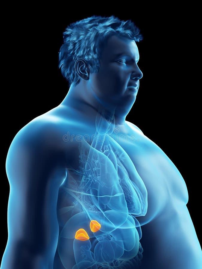 Ett sjukligt fett mans binjure royaltyfri illustrationer
