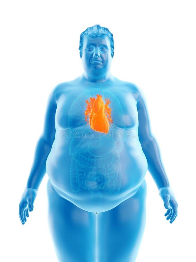 Ett sjukligt fett mans hjärta vektor illustrationer