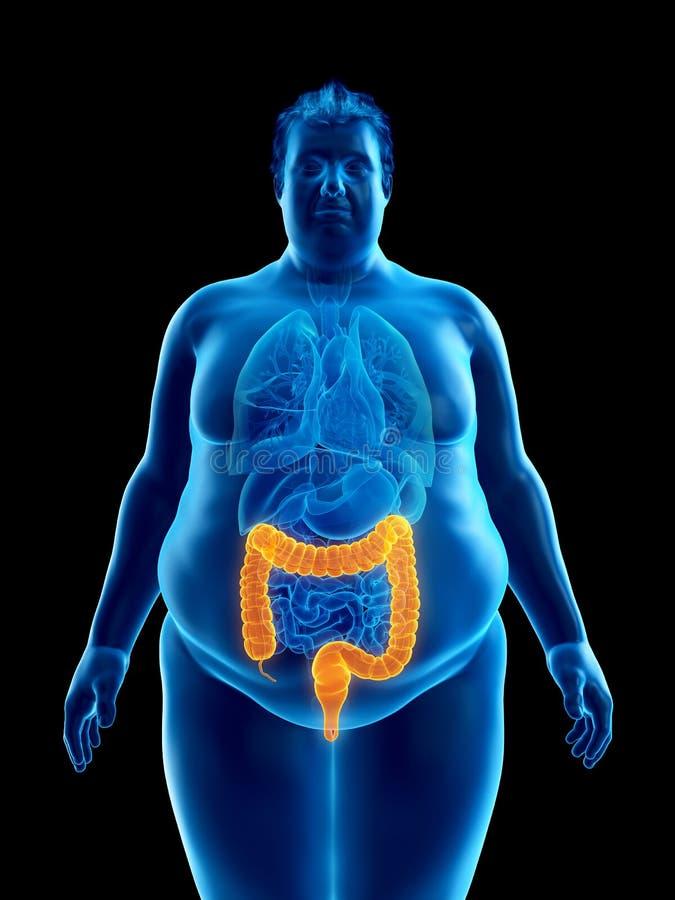 Ett sjukligt fett mans kolonet royaltyfri illustrationer