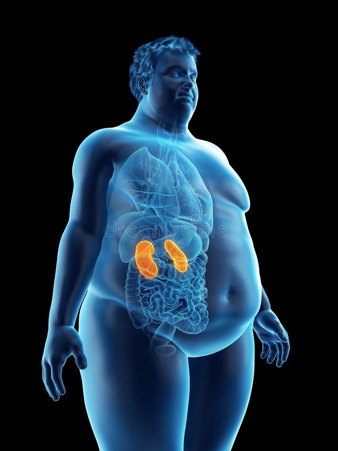 ett sjukligt fett mans njure royaltyfri illustrationer