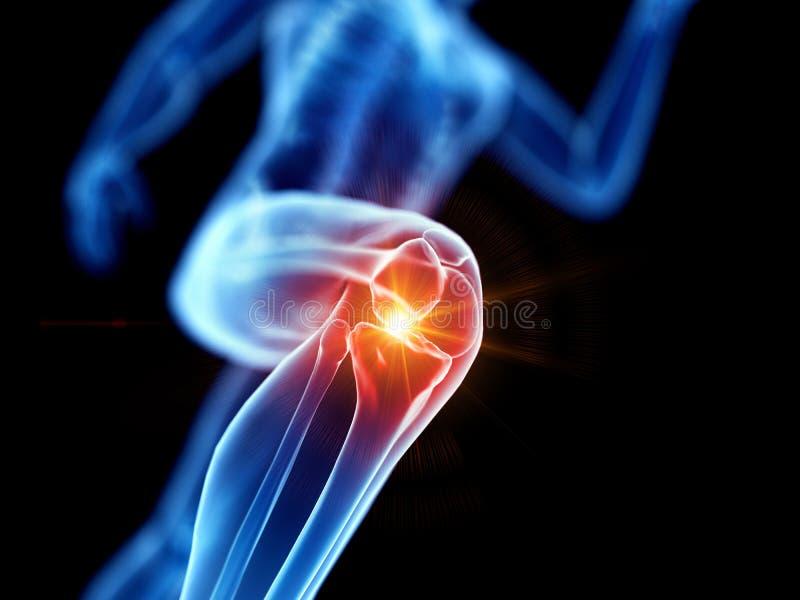 Ett smärtsamt knä för joggers stock illustrationer