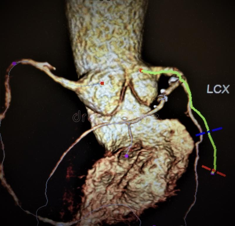 Angiography atherosclerotic changes vessels heart. Every radiological examination has main aim as to help doctor to make right conclusion in diagnosis of patient stock photo