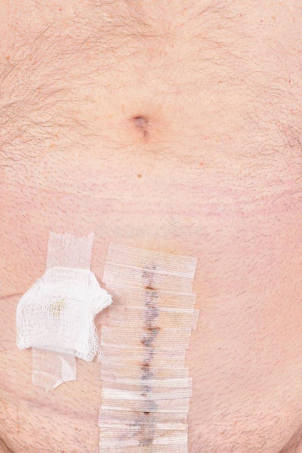 Exécution de chirurgie de Cancer de prostate images libres de droits