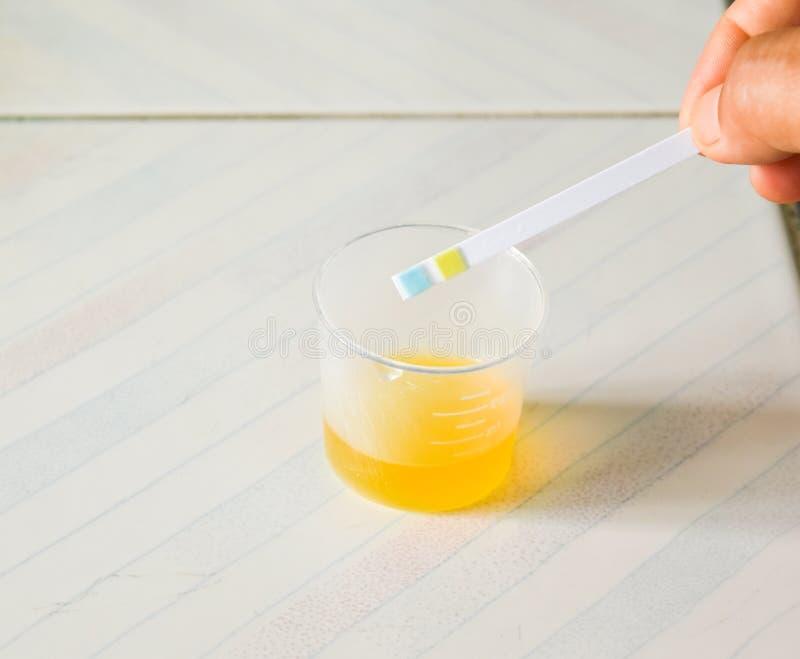Exame da urina imagens de stock
