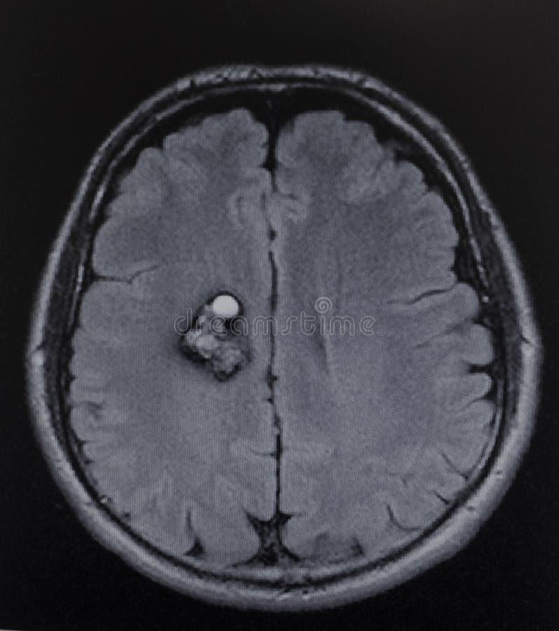 Exame do cérebro dos gânglio do cavernoma de Mri fotos de stock