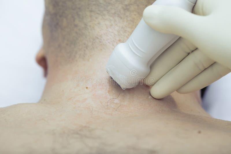 Exame do ultrassom da glândula de tiroide imagens de stock royalty free