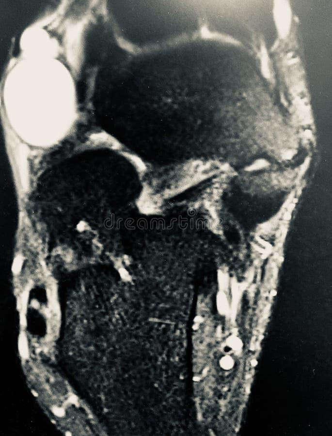 Exame dorsal do mri da massa do aspecto do pé direito fotografia de stock royalty free