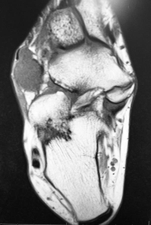 Exame dorsal do mri da massa do aspecto do pé direito imagens de stock