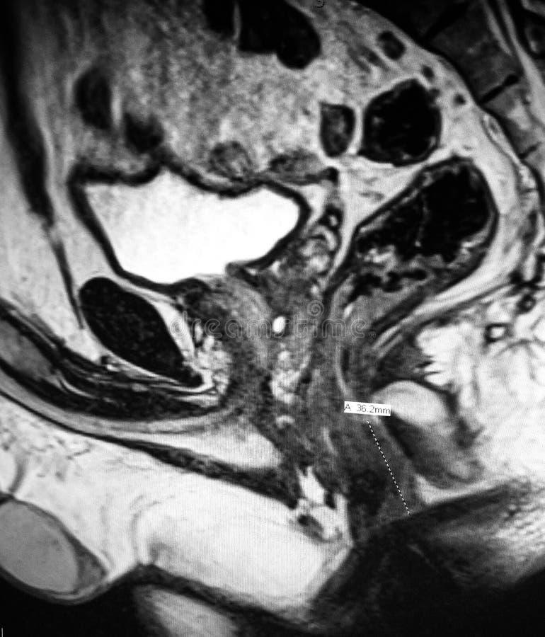Examen aigu de mri de pathologie d'abcès périanal de fistule photographie stock libre de droits