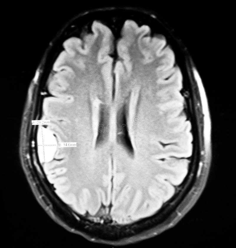 Examen axial supplémentaire de mri de lésion de la masse de convexité de cerveau photographie stock libre de droits