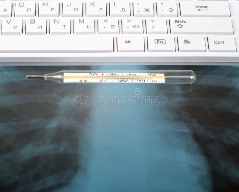 Examen de radiografía y teclado blanco imagen de archivo libre de regalías