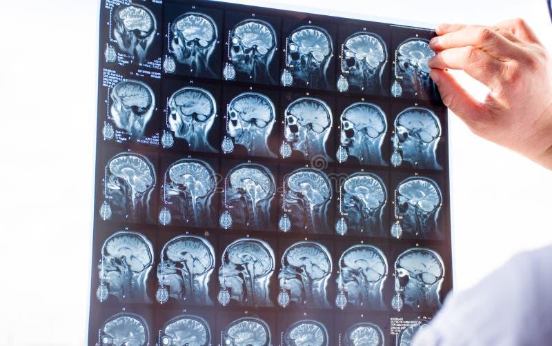 Examen du cerveau avec l'IRM Docteur dans l'instantané frais de balayages d'ordre de secours de l'IRM cérébral de patients utilis image stock