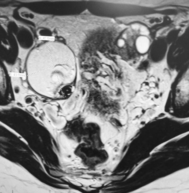 Examen för Teratoma sällsynt äggstocks- patologimri royaltyfria bilder