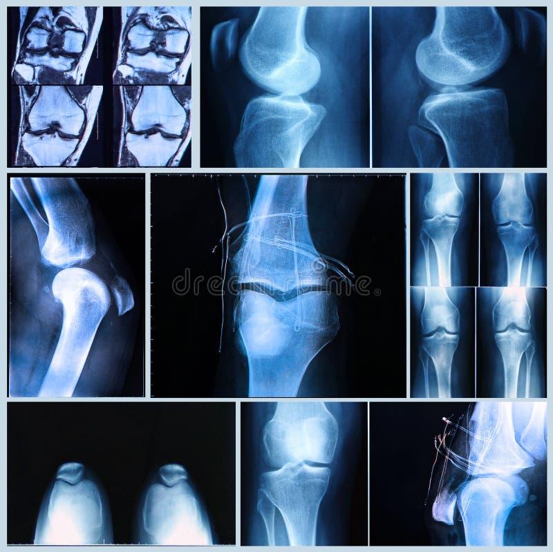Examen médical de genou : Rayon X et balayage d'IRM photographie stock