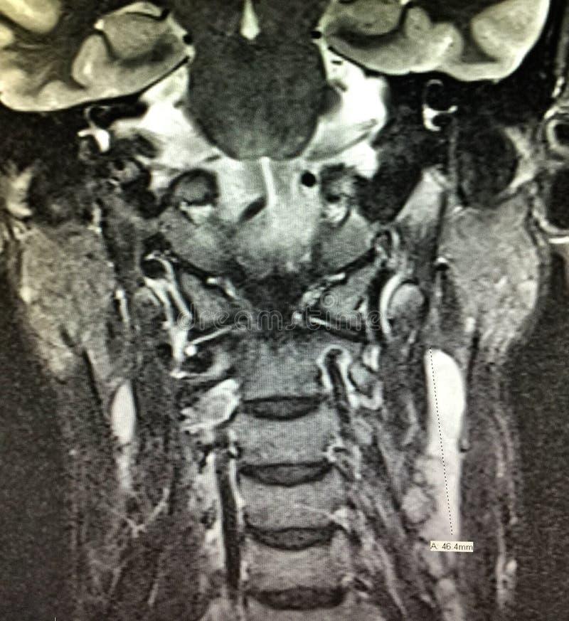 Examen nasofaríngeo del cuello de la cabeza del mri del carcinoma imagen de archivo libre de regalías
