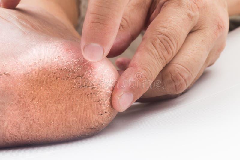 Examining a badly cracked heel. Examining a dry and badly cracked heel royalty free stock image