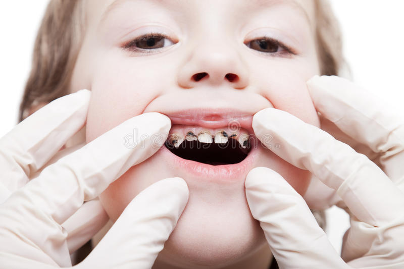 Examining caries teeth decay. Dental medicine and healthcare - dentist examining little patient open mouth showing caries teeth decay stock image