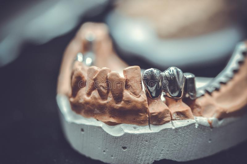 Example of a bridge on an artificial human jaw. Close-up stock image