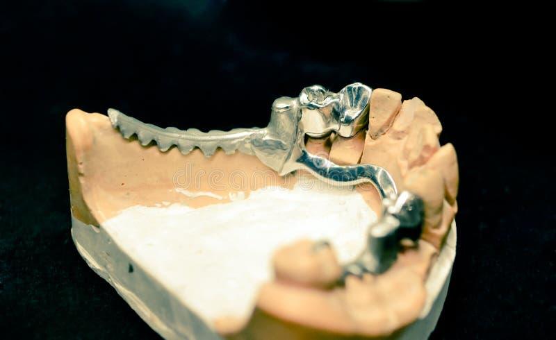 Example of a bridge on an artificial human jaw. Close-up stock photos