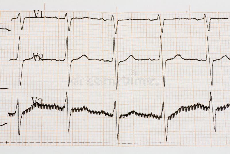 Arrhythmia stock image