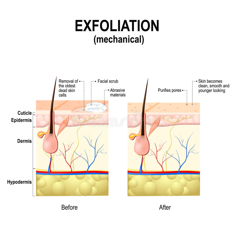 Exfoliation or peel is cosmetic procedures. Exfoliation or Peeling is a cosmetic procedure physically scrubbing to remove impurities from the skin, unclog the stock illustration