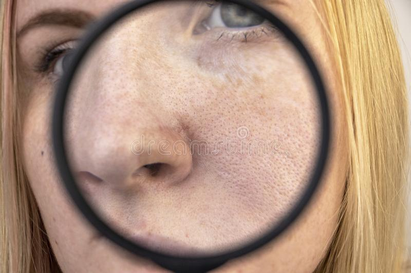 Expanded pores, black spots, acne, rosacea close-up on the nose. A woman is being examined by a doctor. Dermatologist examines the royalty free stock photo