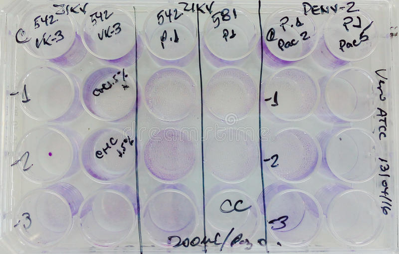 Experimental plate incubating virus infected cells culture. An experimental plate with zika, chikunguya and dengue viruses royalty free stock image
