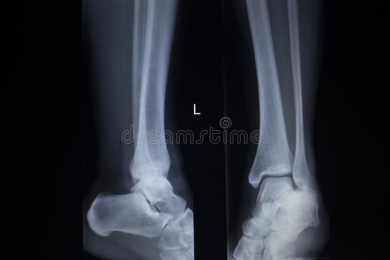 Exploración de la ortopedia de la radiografía de lesión dolorosa del pie del tobillo foto de archivo