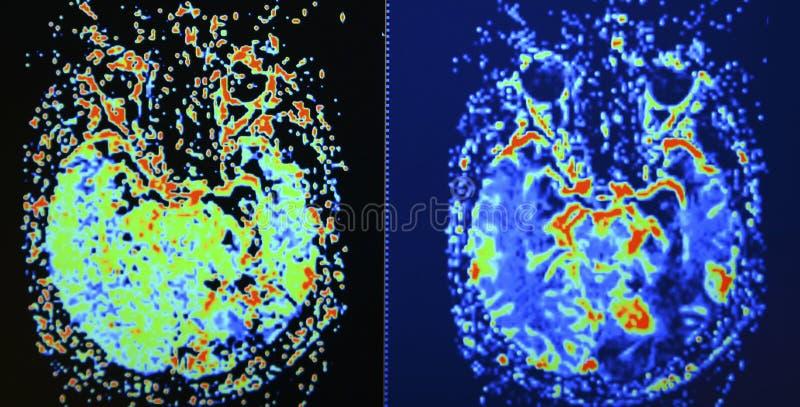 Exploración de la perfusión del cerebro MRI imagen de archivo